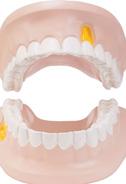 口腔溃疡的7大预防措施